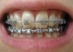 braces